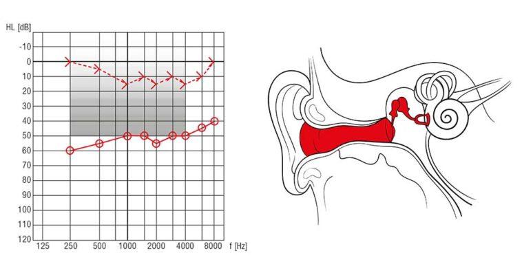 Schallleitungsschwerhörigkeit